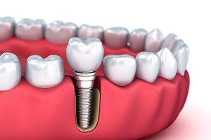 موانع عملية زراعة الاسنان لمرضى